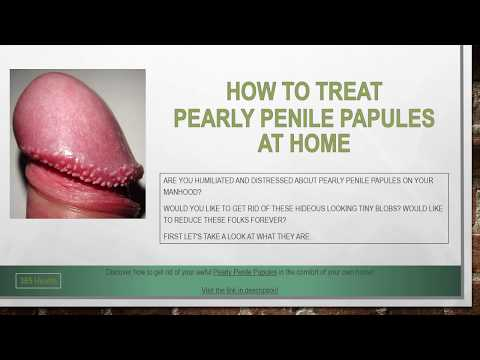 How to Treat Pearly Penile Papules at Home
