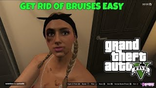 Gta5 Bruises How To Get Rid Of Them