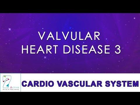 VALVULAR HEART DISEASE 3