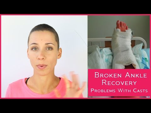 Broken Ankle Recovery -  Problems with Casts