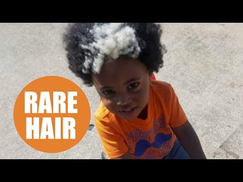 Adorable toddler born with a rare white streak in his hair