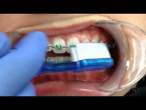 Toothbrushing upper teeth with braces