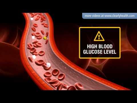 Diabetes: Insulin's side effects