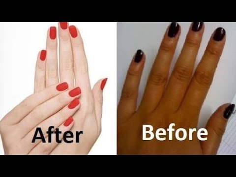 Get Smooth Fair Hands In 5 Minutes | Skin Whitening Formula | 100% Result