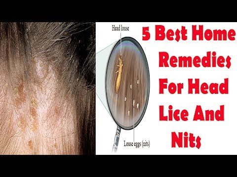 Head Lice Natural Treatment - 5 Best Home Remedies For Head Lice And Nits