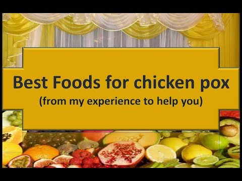 FOODS FOR CHICKENPOX