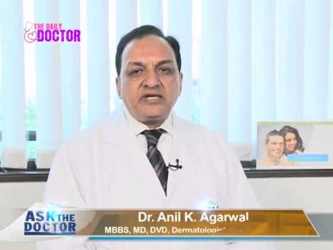 Permanent Removal of Stitch Mark on Face ? - Ask The Doctor - Dr Anil K Agarwal