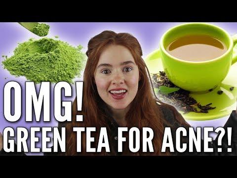 Green Tea: Bulletproof Treatment for Acne?!