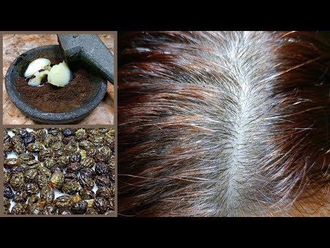 Are You Embarrassed By Your Gray Hair? Natural Treatment to Get Rid of Gray Hair!