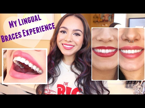 All About My Lingual Braces! + Progress Photos