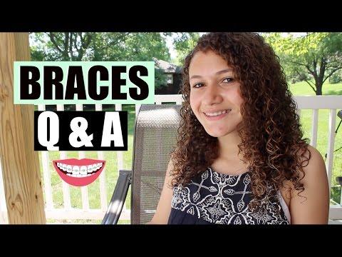 Braces Q & A