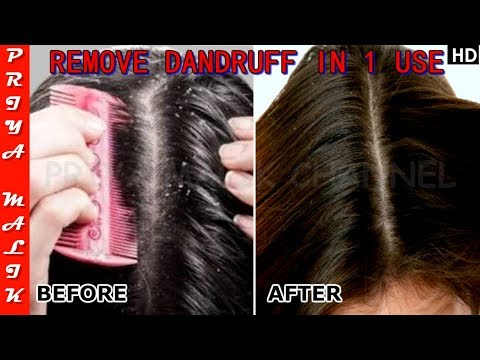 Apply this Once on your Hair and Get Rid of Dandruff Instantly - Priya Malik