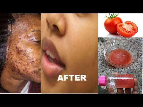 ERASE ALL YOUR BLACK MARKS & DARK SPOTS IN 7 DAYS USING TOMATO