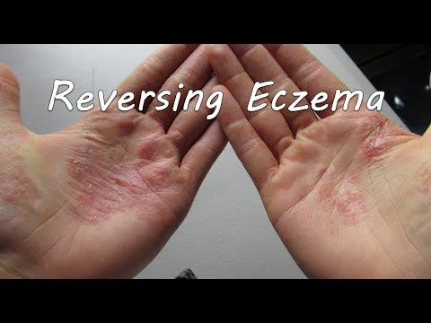 Top 4 Tips for Successful Eczema-Free Living