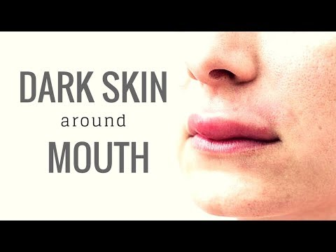 How to Get Rid Of Dark Skin Around Mouth | Remove Dark Patches Around Mouth
