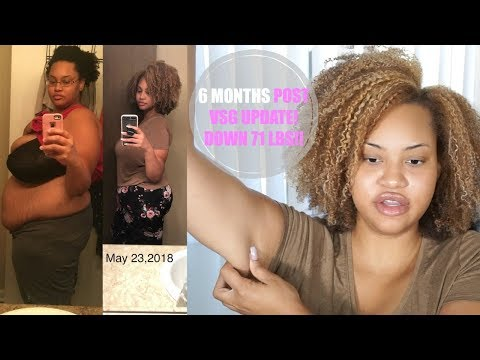 6 MTH VSG WEIGHT LOSS UPDATE: HIGH PROTEIN DIET, HAIR SHEDDING, LOOSE SKIN?! BEFORE & AFTER PICS!