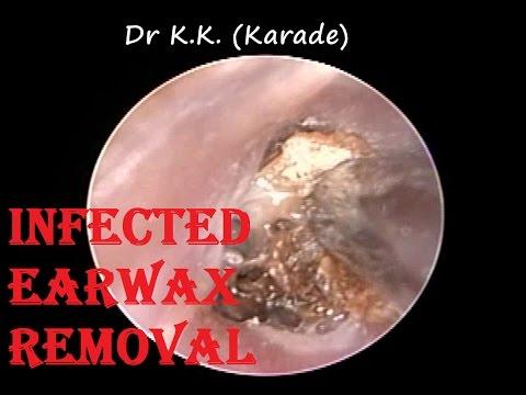 Suffering from Ear Blockage , Pain & Vertigo for months - Got Relief after Procedure