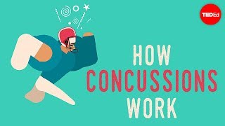 What happens when you have a concussion? - Clifford Robbins