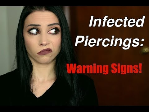 Infected Piercings: The Warning Signs & What To Watch For!