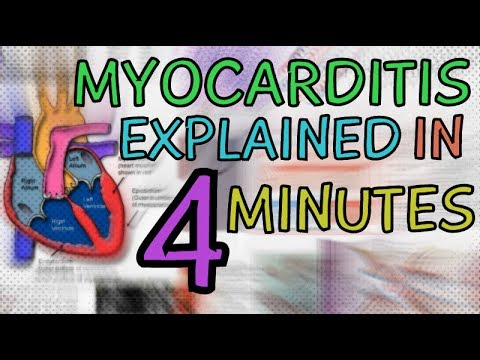 WHAT IS MYOCARDITIS? MYOCARDITIS EXPLAINED IN 4 MINUTES - CAUSES, SYMPTOMS, DIAGNOSIS, TREATMENT