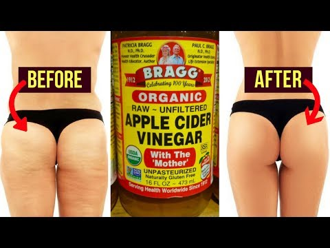 How to Lose Thigh Fat Fast / How to Get Rid of Cellulite Fast / Apple Cider Vinegar
