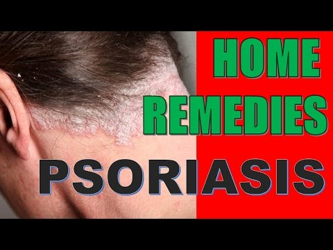 Amazing Herbal Remedies For Psoriasis THAT WORK!!
