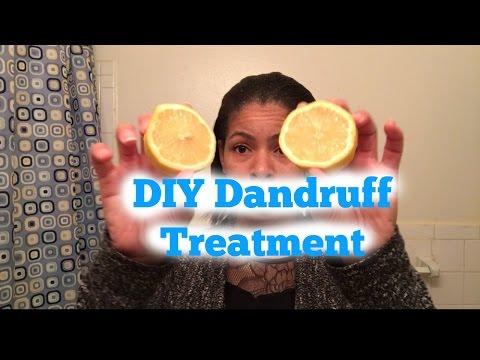 How to get rid of dandruff and scalp eczema using lemons