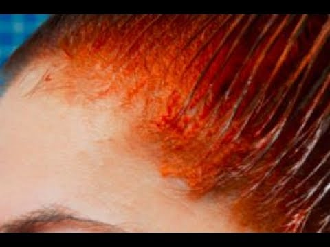 How to Remove Hair Dye Stains on Skin | How to Get Rid of Hair Dye Stains on skin