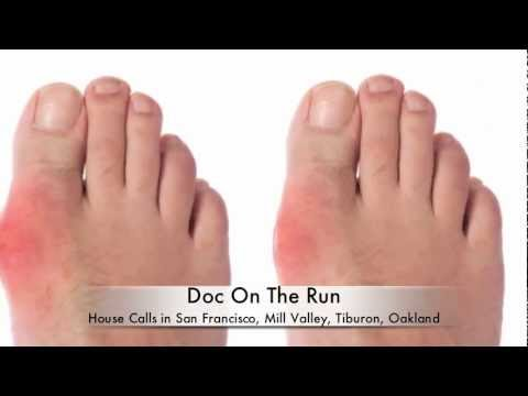 What is the Best Way to Diagnose Gout in the Foot?.m4v