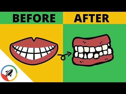 How To Make Your Teeth Crooked | 2 UNSUSPECTED WAYS!