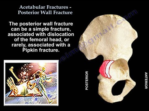 Acetabulum Fracture Posterior Wall Fracture   - Everything You Need To Know - Dr. Nabil Ebraheim