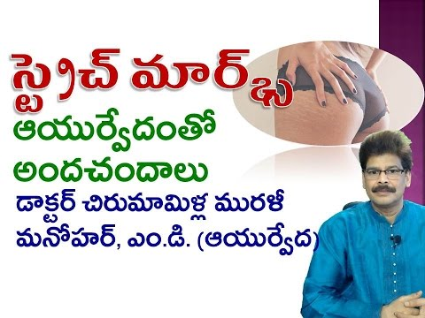 Stretch Marks | Home Remedies | Telugu | Dr. Murali Manohar Chirumamilla, M.D. (Ayurveda)