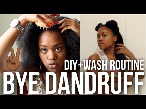 Natural Hair Wash Day Routine for Dandruff and Itchy Scalp + ACV Rinse DIY