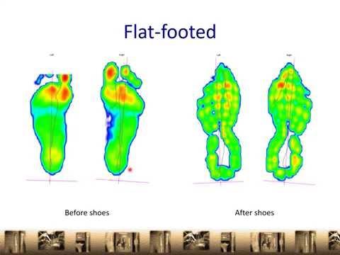 Choosing A Good Running Shoe   Flat foot   Overpronator   Orthopaedic Clinic Singapore