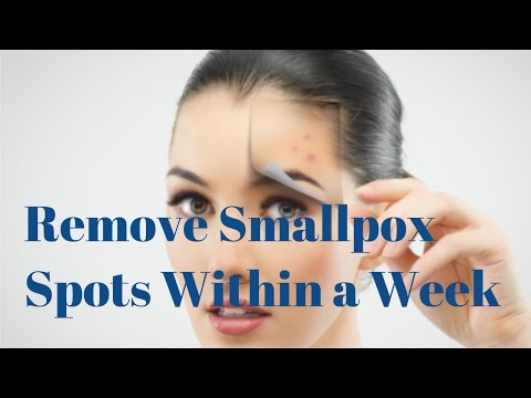 Remove Small Pox Spots At Home Fast
