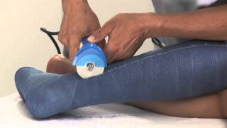 Synthetic Lower Leg Cast Removal