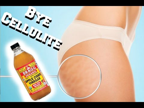 How to get rid of CELLULITE| Apple Cider Vinegar