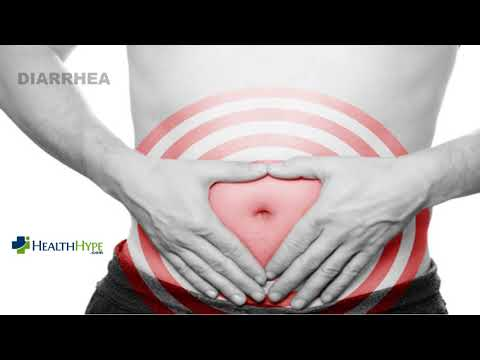 Colon Pain Causes, Location and Symptoms