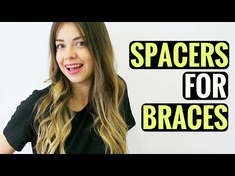 GETTING SPACERS FOR BRACES - WHAT ARE SPACERS, PAIN, HOW LONG