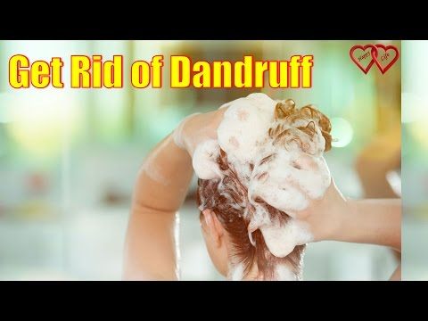 11 Natural Treatments to Get Rid of Dandruff