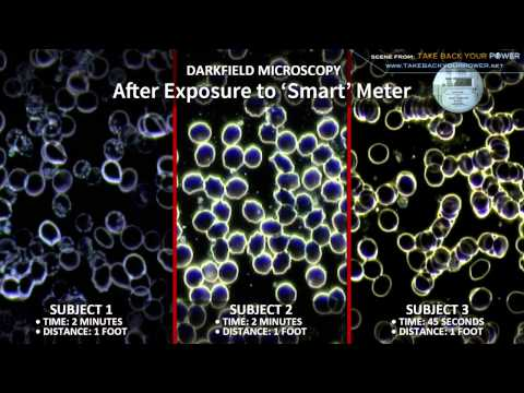 Live Blood Analysis - Observable Effects of RF/MW Radiation via Smart Meters