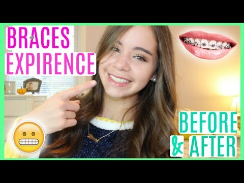 MY BRACES EXPERIENCE! BEFORE & AFTER