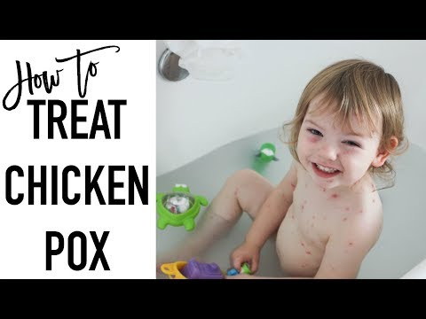 How to treat chicken pox | CHICKEN POX REMEDIES