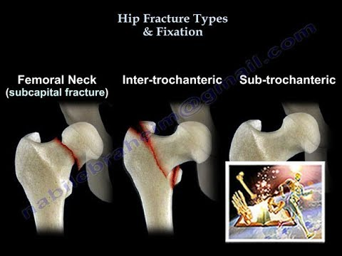 Hip Fracture Types & Fixation - Everything You Need To Know - Dr. Nabil Ebraheim