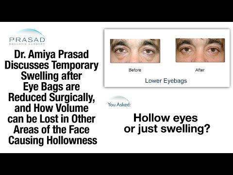Why Swelling after Eye Bag Surgery Can Temporarily Affect Appearance, & Treating Adjacent Hollowness