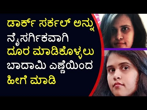 How to Remove Dark Circles in Kannada: Dark Circles under Eyes Treatment at Home that 100% WORKS