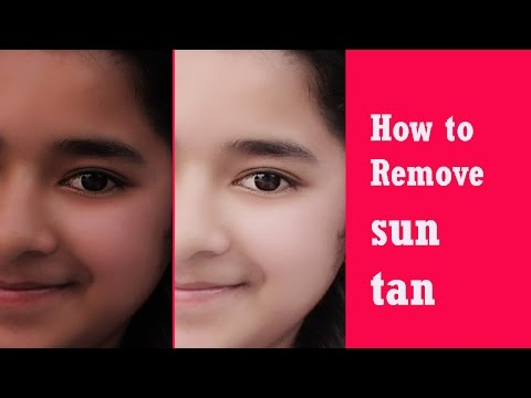 How to Remove Sun Tan | Sun Tan Removal Home Remedies