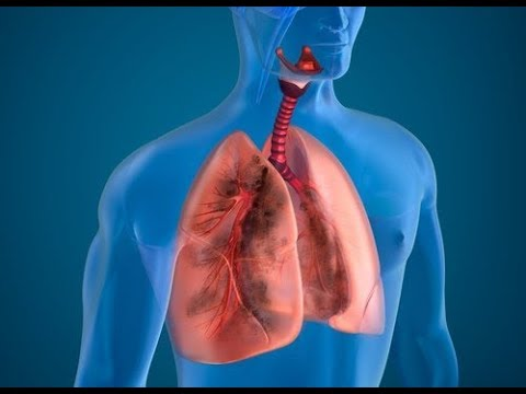 10 Natural Ingredients to Cleanse Smoker Lungs