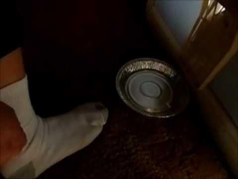 Detecting and Killing Fleas
