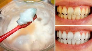 How to Naturally Whiten Your Teeth at Home In 3 Minutes